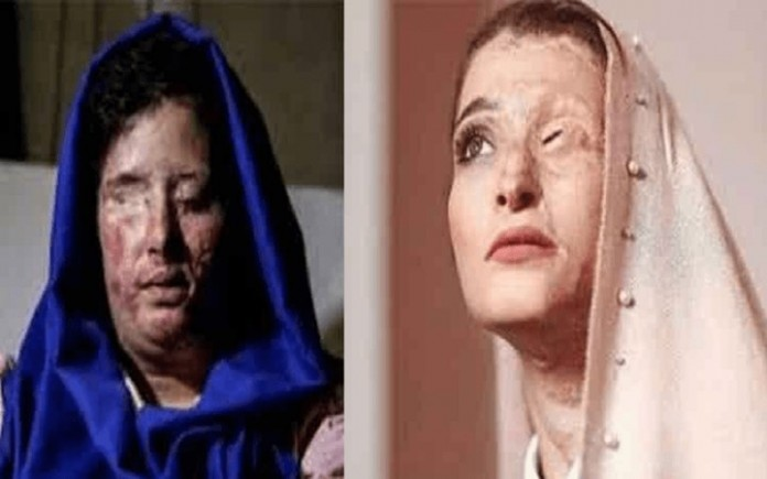 Sensitive Image - Iranian women who fell victim to government-backed acid attacks slam the supreme leader Ali Khamenei representatives due to their hate-mongering remarks